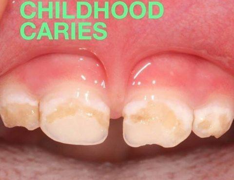 Kawat Gigi Kidz Dental Care
