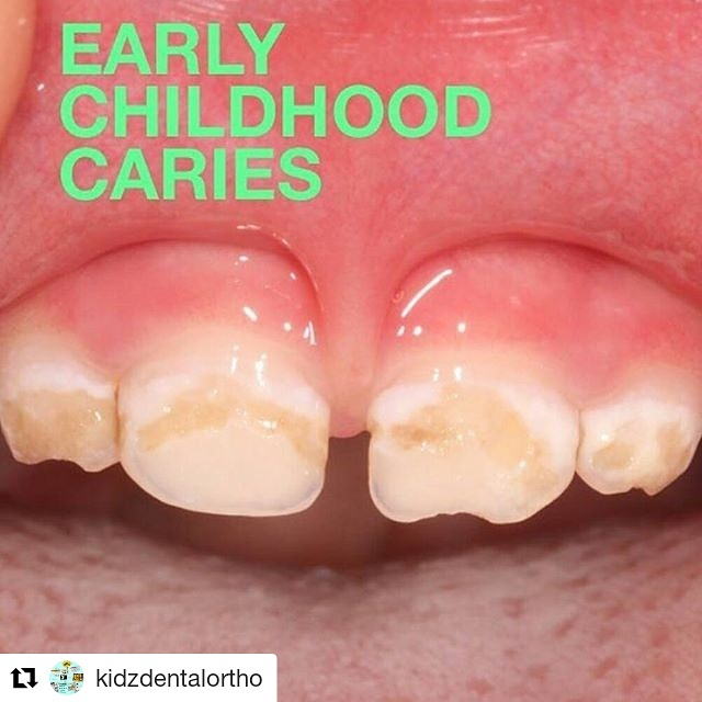 Karang Gigi Pada Anak Kidz Dental Care
