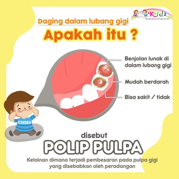 Apakah Polip Pulpa?