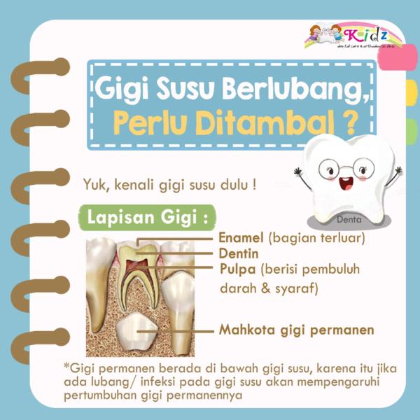 Gigi Susu Berlubang perlu ditambal?