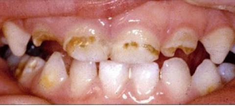 Gigi anak terlihat aneh 1