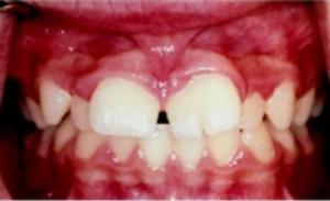 Gigi anak terlihat aneh 8