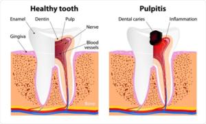 Perbandingan Gigi Sehat dan Gigi Karies