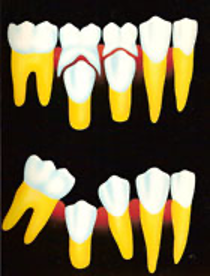 Risiko gigi tetap juga berlubang 2