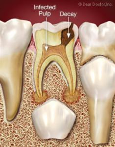 2.Risiko gigi tetap juga berlubang 3