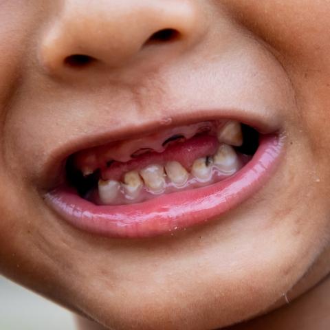 Bahaya Gigi Berlubang pada Anak 1